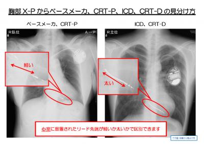 XP判別~1.PNG