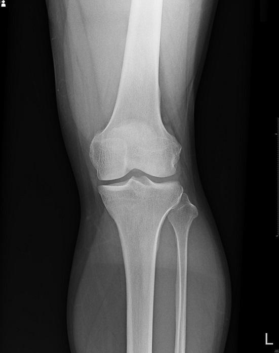 膝関節正面