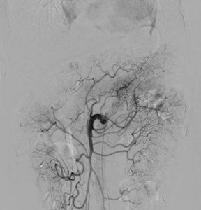 上腸間膜動脈