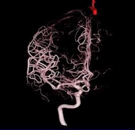 頭部血管(3D)