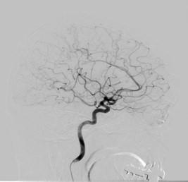頭部血管(側面像)