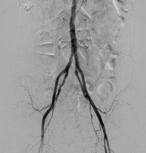 骨盤の動脈